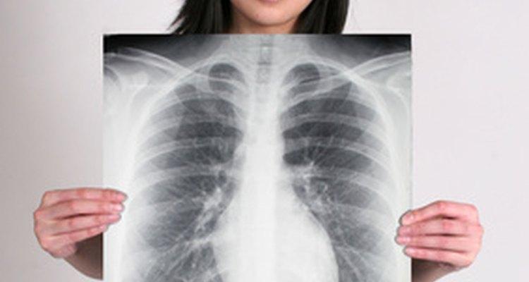 Um raio-x de tórax pode mostrar a sombra cardíaca