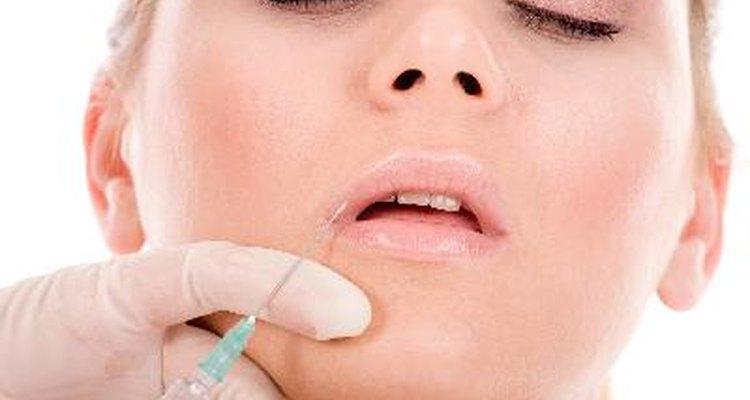 Botox para hacer desaparecer las arrugas.