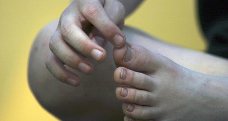 Quebrar o dedo do pé pode ser doloroso, mas você mesmo pode corrigi-lo