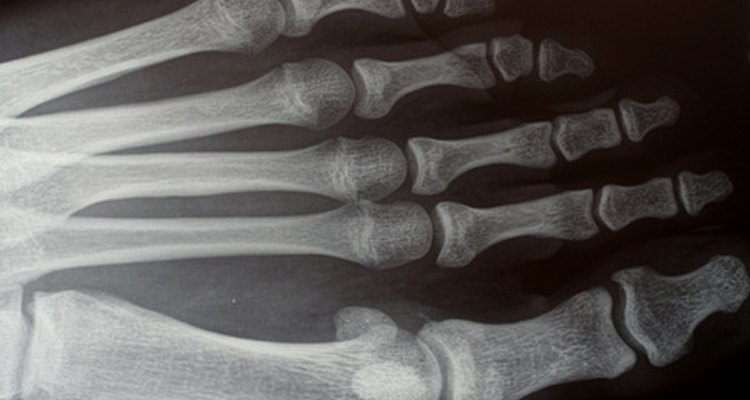 Although they have beneficial applications, X-rays are also dangerous.