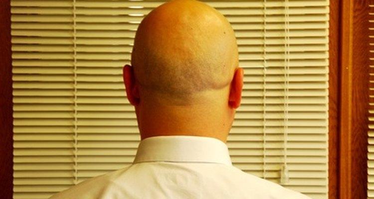 Aplica champú a diario a tu cuero cabelludo para reducir el brillo.