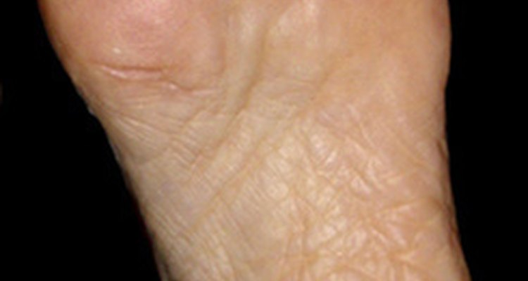 Hypothyroidism sometimes causes foot pain.