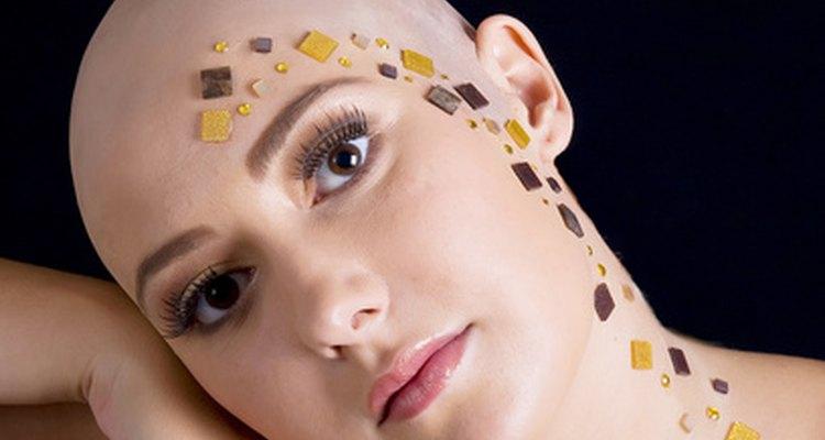 La alopecia areata es una enfermedad autoinmune que causa la pérdida de cabello.