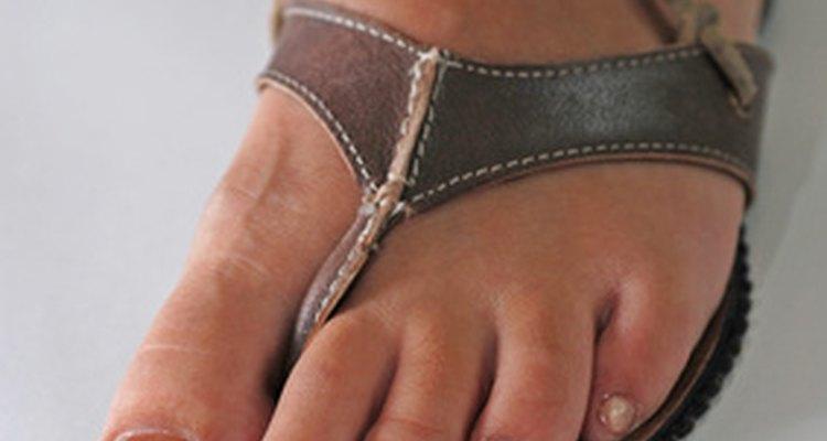 Aprenda a se tratar após a extração de uma das unhas do pé