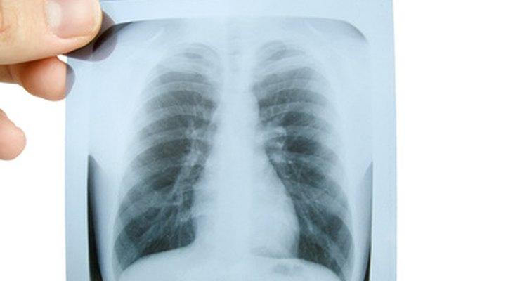 O cigarro é a principal causa de doença do pulmão e redução da capacidade pulmonar