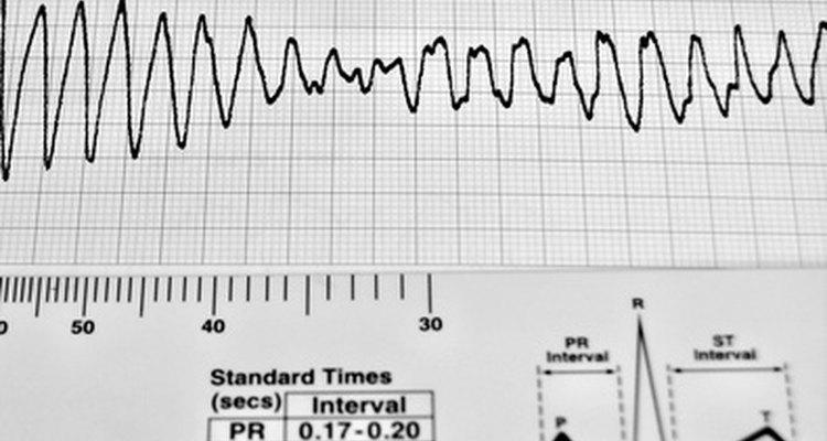 Un marcapasos mide la velocidad a la cual el corazón late.
