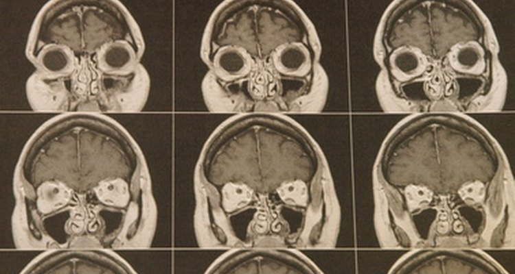 Acoustic neuromas and meningiomas are most commonly diagnosed on MRI scans.