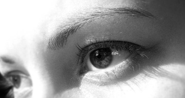 As verrugas em volta dos olhos podem ser irritantes