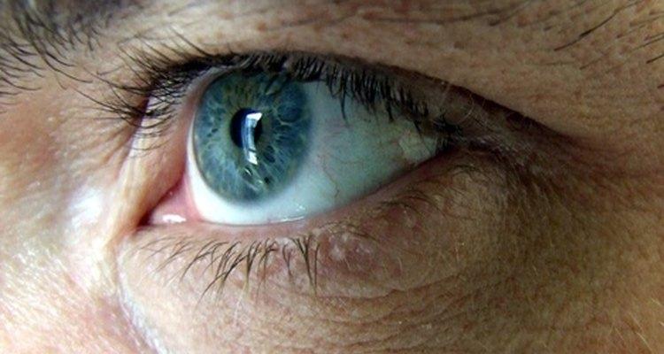 O inchaço na córnea pode criar distorções visuais
