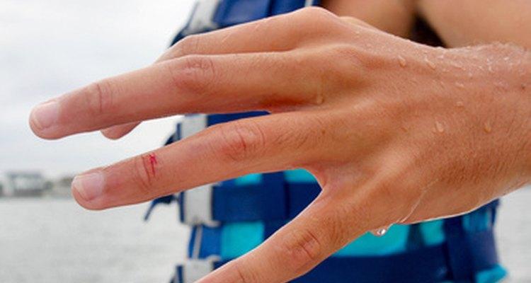 Una vez firmados, los acuerdos de responsabilidad evitan demandas por lesiones causadas por negligencia ordinaria.