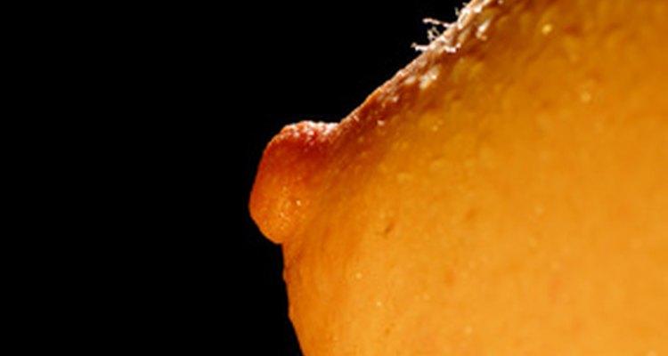 La presencia de un papiloma intraductal puede representar un riesgo de padecer cáncer.