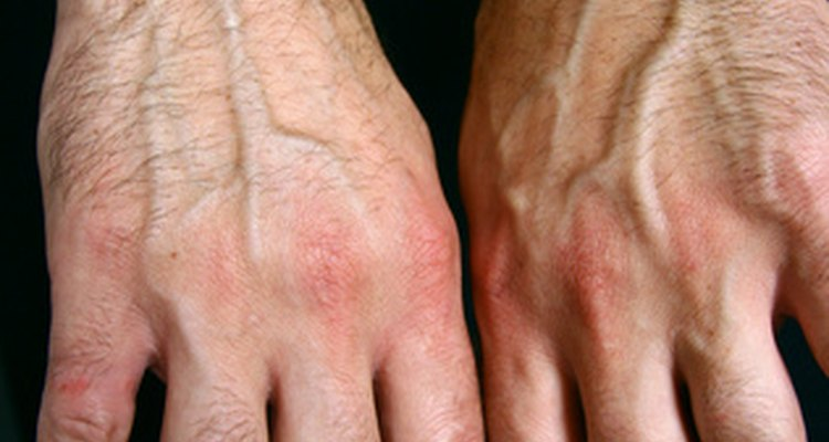 Reiter's Syndrome causes painful arthritis.