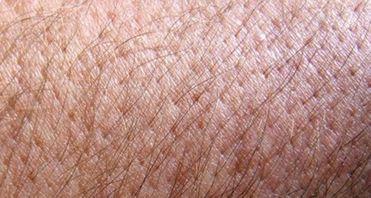 Sarcoptic mites can cause normal skin to become red and itchy.