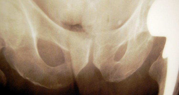 El cáncer de hueso suele afectar a la cadera y al fémur.