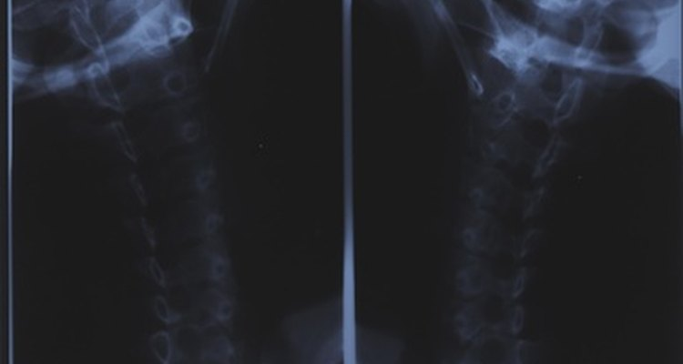 Radiography has several disadvantages surrounding safety