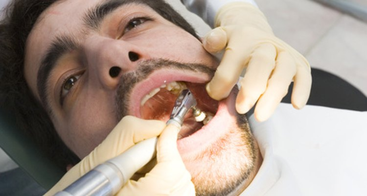 Only a dentist is qualified to remove gold teeth.