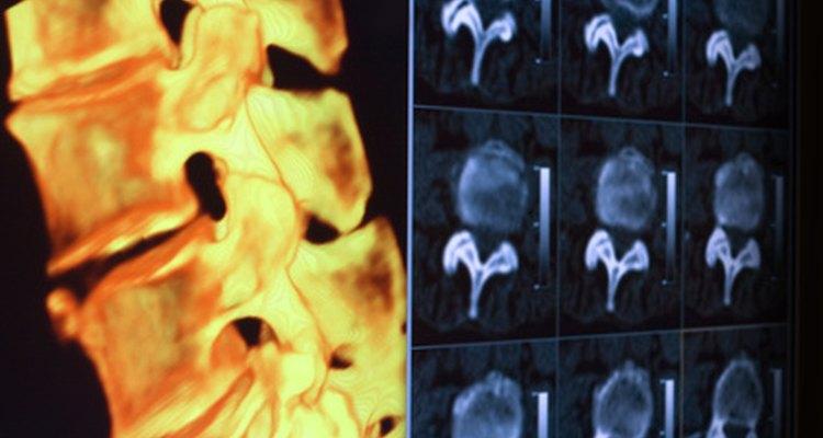 Vértebra e discos com aberturas para os nervos espinhais