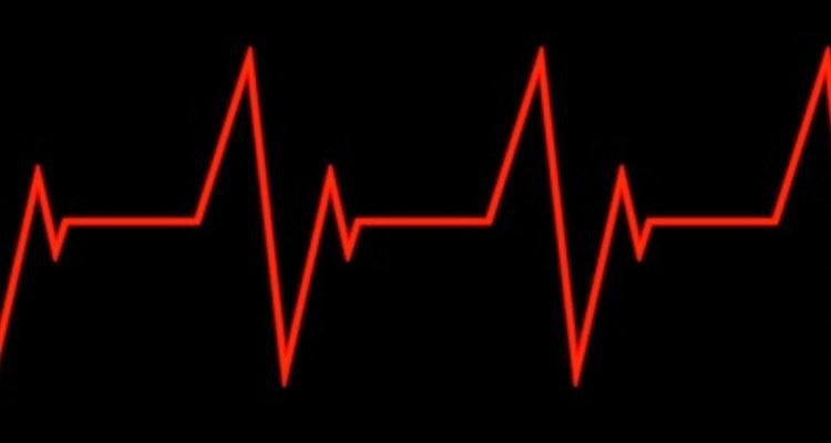 Tu pulso es un indicador de tu estado de salud