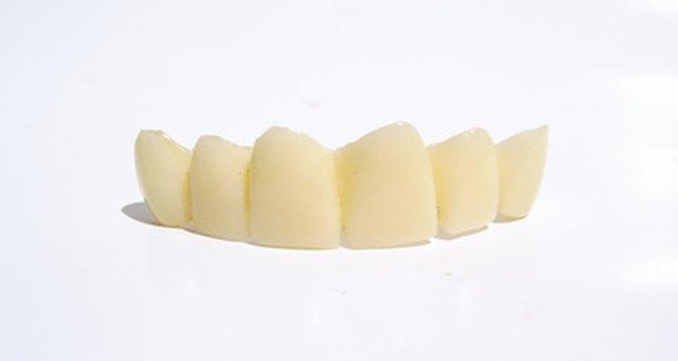 Un puente dental puede reemplazar la falta de un diente.