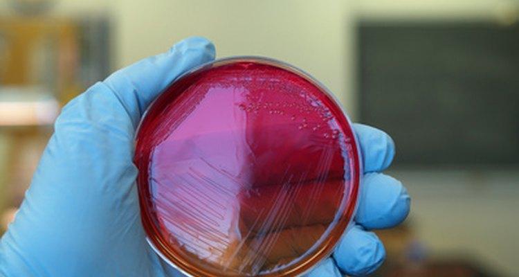 Utilize uma alça de inoculação metálica estéril para espalhar a amostra sobre a superfície de ágar