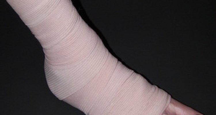 O aumento da permeabilidade capilar causa o inchaço que acompanha as lesões