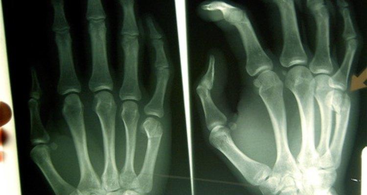La tecnología radiológica es un campo que presenta serios peligros potenciales ocupacionales.