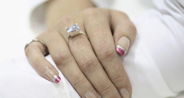 Tanto anéis de prata quanto de ouro podem deixar marcas na pele