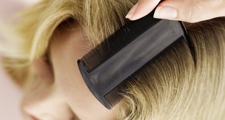 Los piojos de la cabeza viven en el pelo, típicamente dejando huevos (llamados liendres) en la base del tallo piloso.