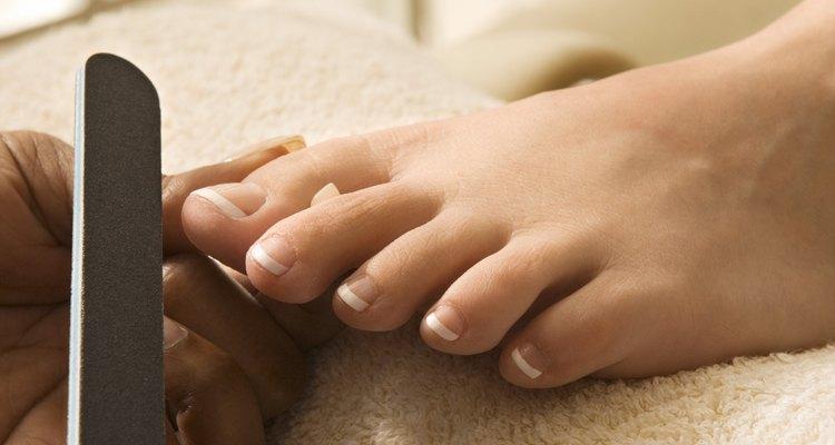 Onicoptosis es el término médico para la caída de las uñas.