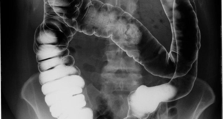 O cólon ascendente está no lado direito do abdome, e a dor localizada pode indicar colite