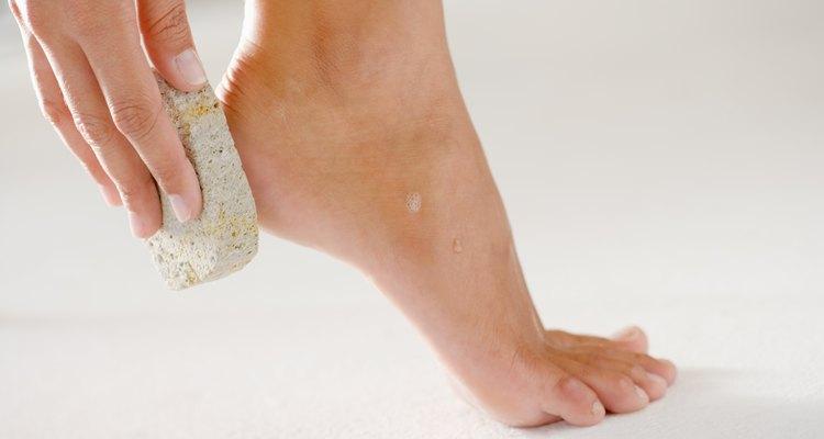 A esfoliação dos pés é importante para sua saúde