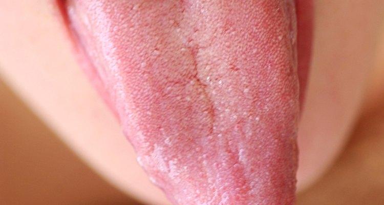 Cuando los dientes muerden la lengua y causan cortes y trauma.