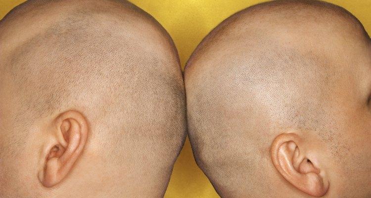 A queda de cabelos por medicamentos muitas vezes se torna mais um constrangimento