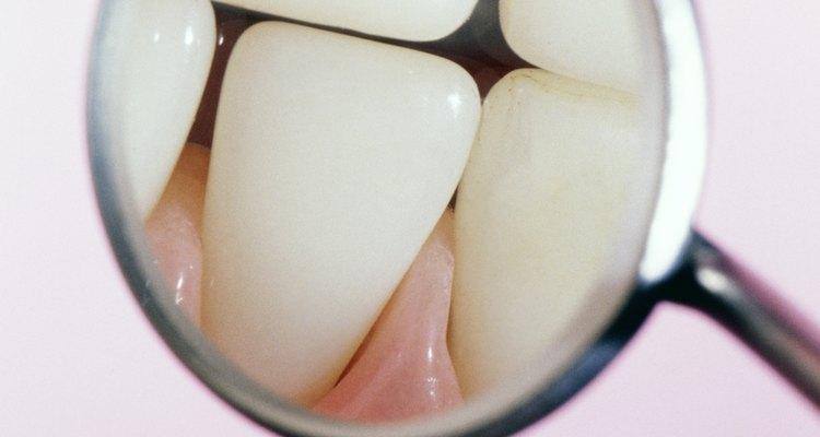 La mayoría de los dentistas no recomiendan que tú mismo te saques los dientes sueltos tirando de ellos.