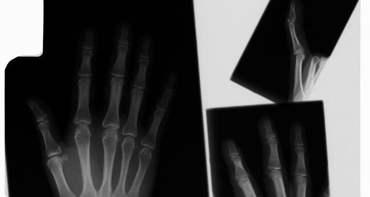 Deslocar o dedo mínimo lateralmente é a melhor maneira de quebrar os dedos de um agressor