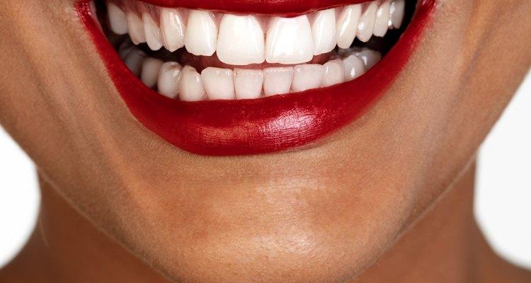 Um conjunto temporário de próteses deve ser colocado no lugar imediatamente após a extração dos dentes remanescentes