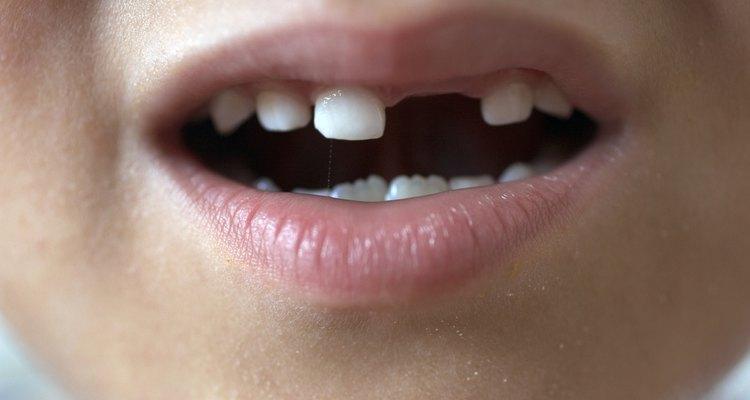 Crie um efeito de dente caído com o esmalte