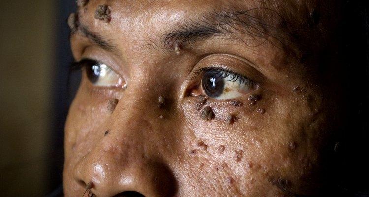 Verrugas na face de um homem