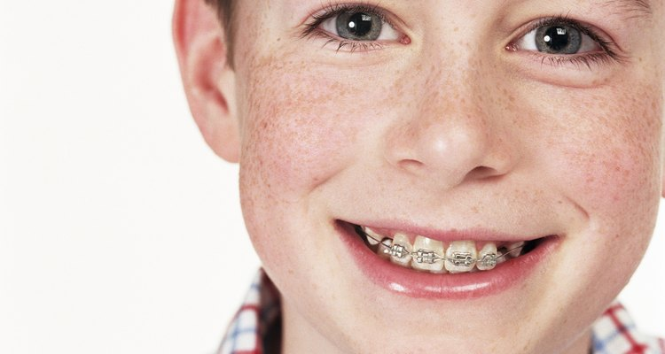 Moving from braces to a retainer can be a difficult adjustment, but there are simple ways to make the transition easier.