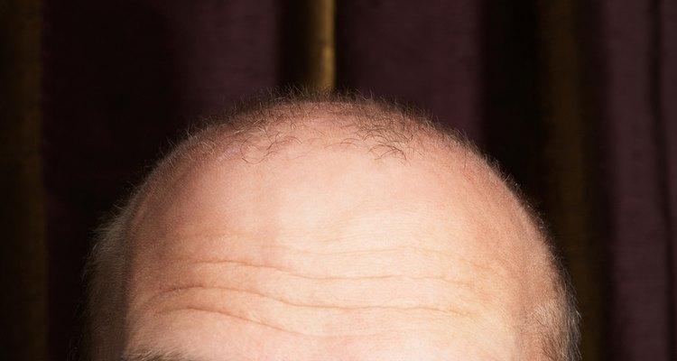 Cropped studio shot of balding man
