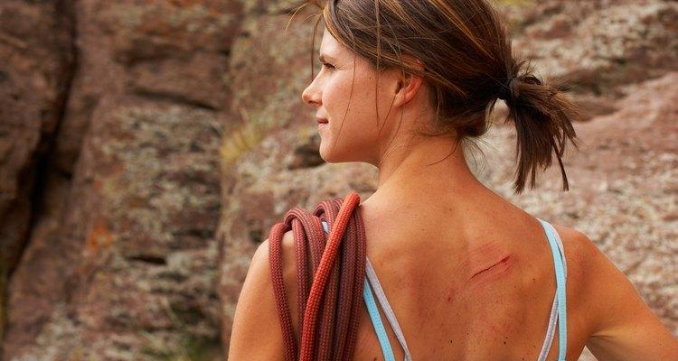Todas as feridas produzem tecido cicatricial durante o processo de cura