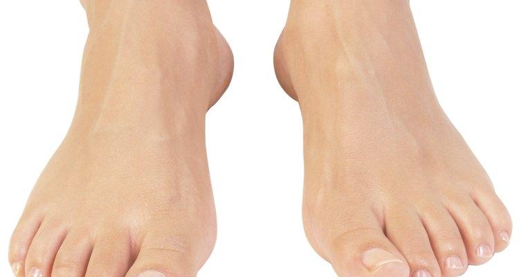 Doença do pé mocassim