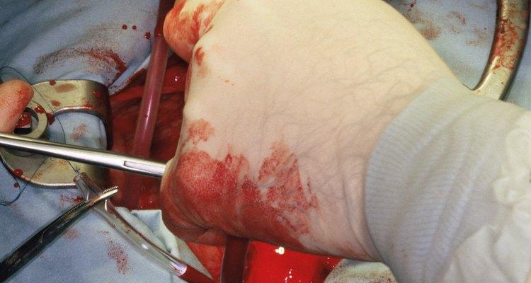 Saiba mais sobre a cirurgia de remoção da vesícula biliar