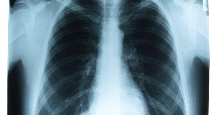 O tórax como é visto em um raio-X, incluindo os pulmões