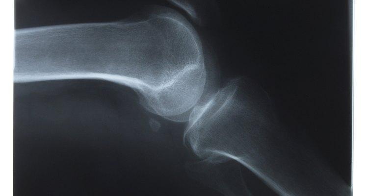 Los rayos X ayudan a identificar a las víctimas por estructura, lesión o evidencia de enfermedad presente.