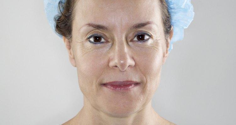 O lifting com fio, ou fio russo, é uma técnica que deixa pouca ou nenhuma cicatriz no rosto