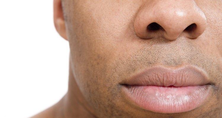 A rinofima faz o nariz ficar inchado e avermelhado
