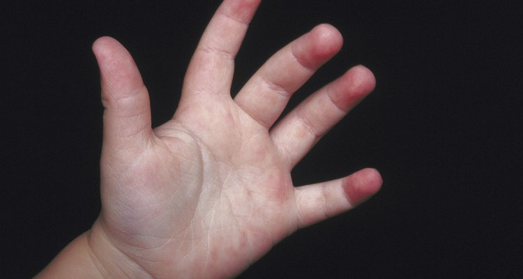 El aleteo de las manos es un comportamiento autoestimulante natural.