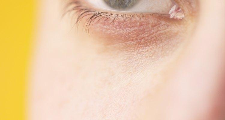 Cuando trabajas con metal, es inevitable que alguna vez quede una viruta de metal en tu ojo.