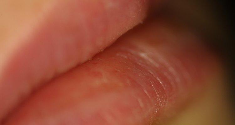 El brillo transparente ayuda a ocultar los labios partidos.
